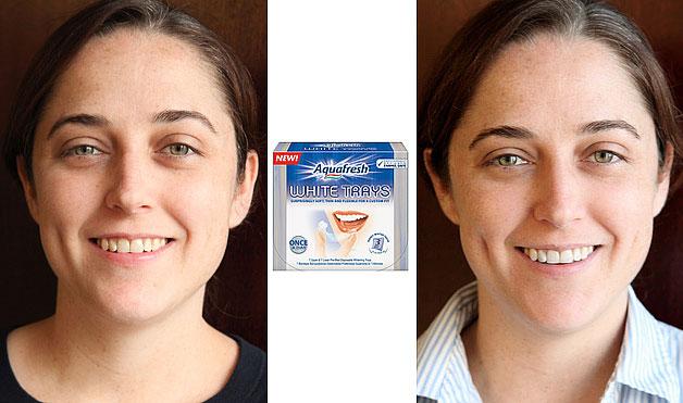 отбеливание 1 зуба цена