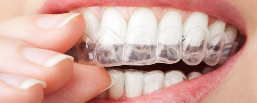 whitening-trays-001