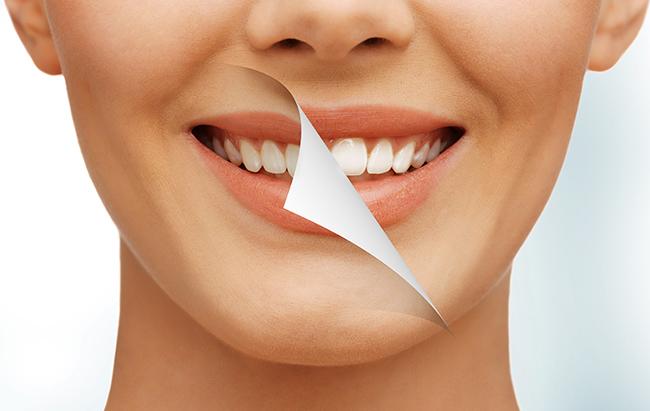 super-smile1