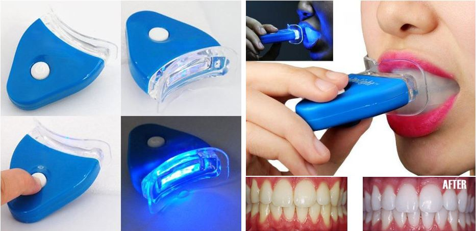 white-light-whitening-teeth