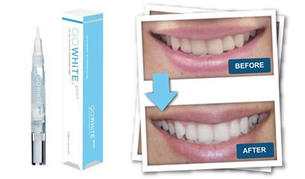 Go-Smile-Teeth-Whitening-Pen-2