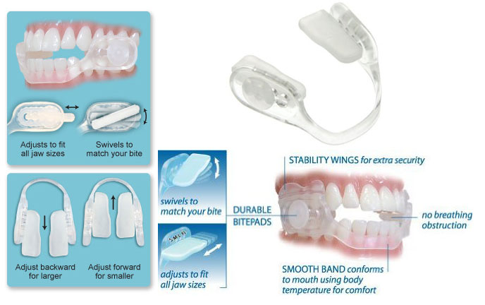 SleepRight-Select-Slim-Comfort-Dental-Guard-1