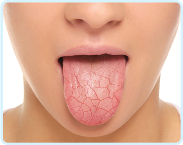 dry-mouth-tongue