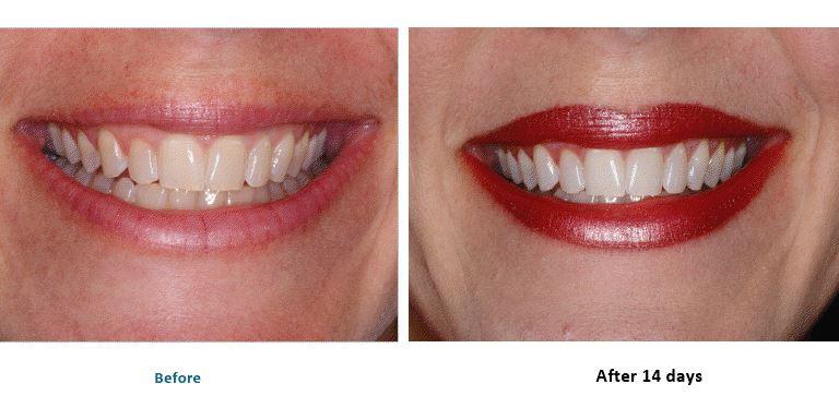 teethresults