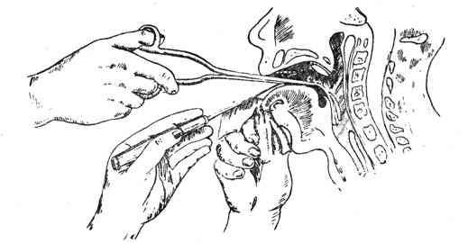 Инородные тела из горла