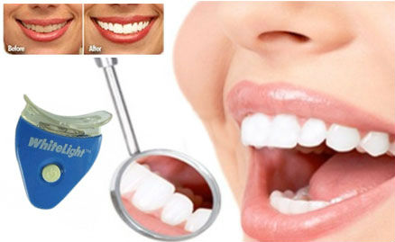 Whitelight-Teeth-Whitening